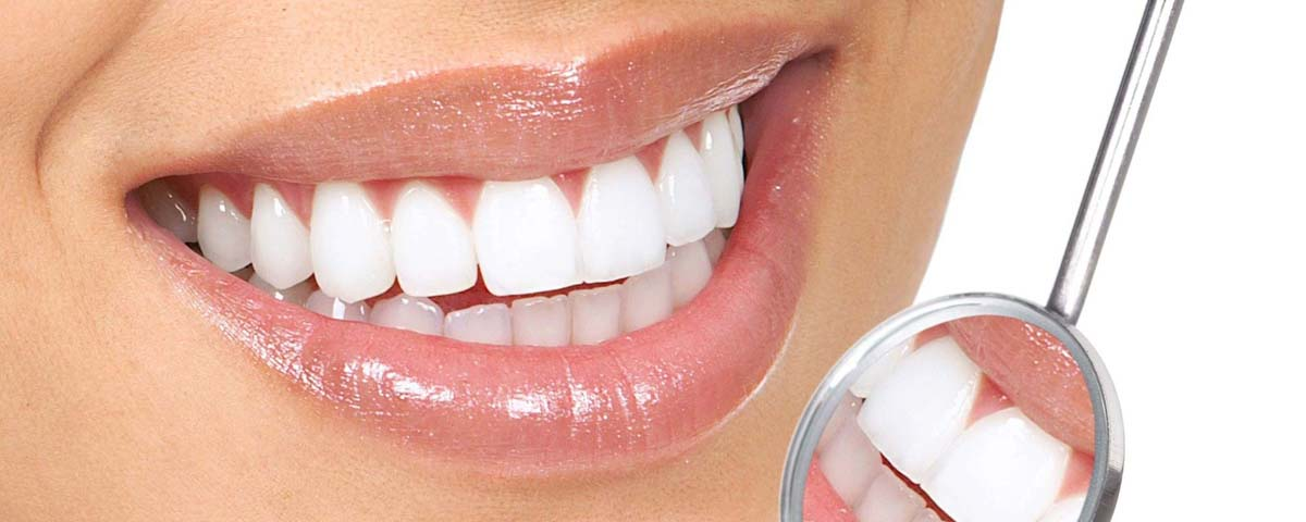 What it takes to have that 'perfect' smile…for you