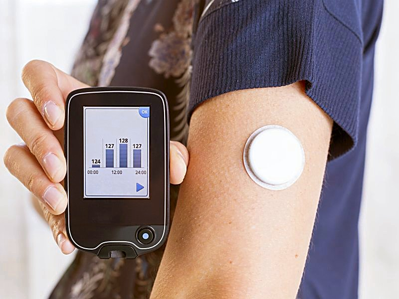 Ending postcode lottery for wearable diabetes monitors