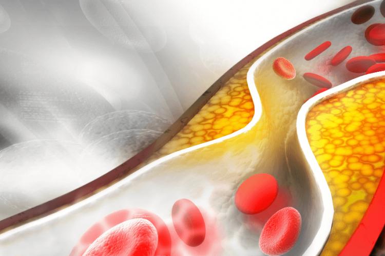 Familial hypercholestrolaemia