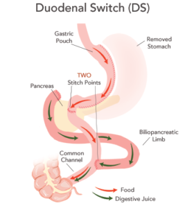 Biliopancreatic diversion with duodenal switch (BPD-DS)